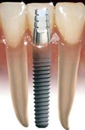 Зубные имплантаты